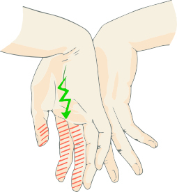 手の外科~その6~手根管症候群 診断と治療~_a0296269_09435839.jpg