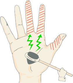 手の外科~その6~手根管症候群 診断と治療~_a0296269_09435881.jpg