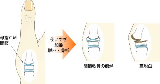手の外科~その7~母指CM関節症~_a0296269_09430193.jpg
