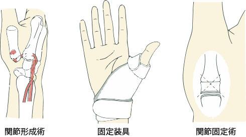 手の外科~その7~母指CM関節症 診断と治療~_a0296269_09214310.jpg