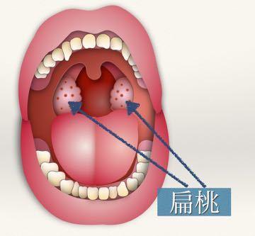膿栓の治療 〜扁桃凝固術〜_e0084756_22093433.jpg