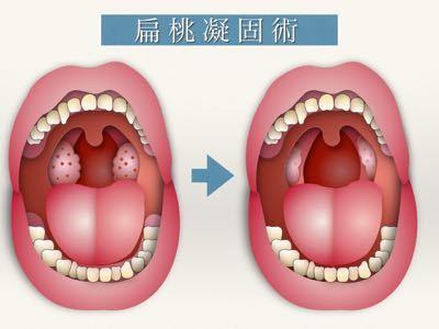 膿栓の治療 〜扁桃凝固術〜_e0084756_22103611.jpg