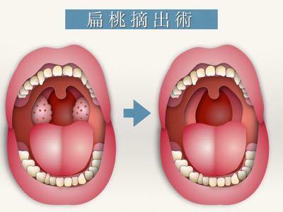 膿栓の治療 〜扁桃凝固術〜_e0084756_22105133.jpg