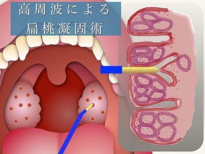 膿栓の治療 〜扁桃凝固術〜_e0084756_22110713.jpg