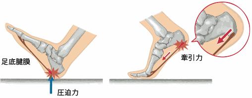 足の痛み~1足底腱膜炎~_a0296269_09492482.jpg