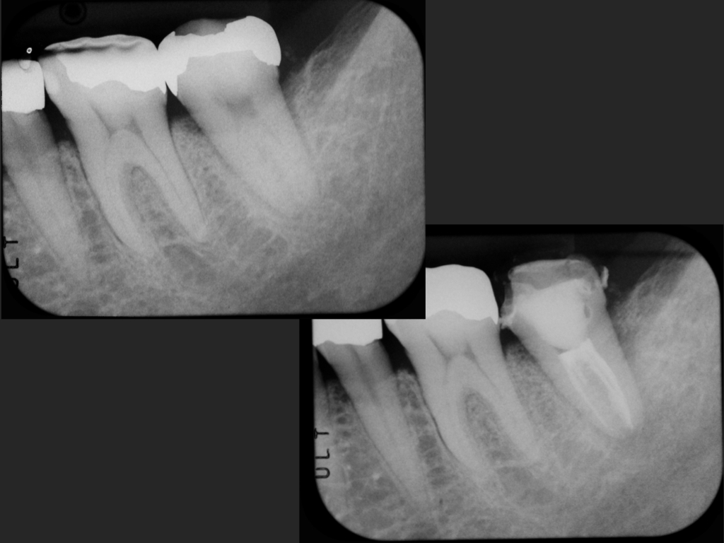 2015/01/30 歯根破折の予兆1_b0112648_024526.jpg