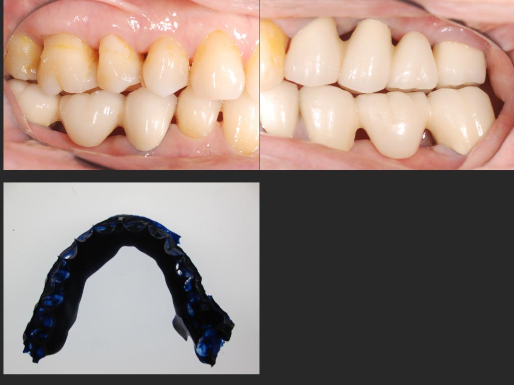 2015/01/31 歯根破折の予兆2_b0112648_1325076.jpg