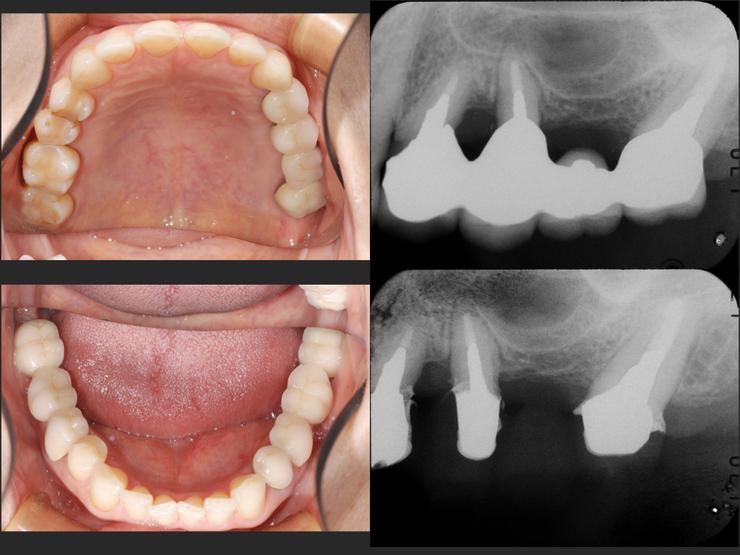 2015/01/31 歯根破折の予兆2_b0112648_1415818.jpg