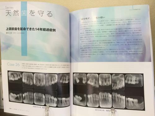 歯科専門雑誌に私の論文が掲載されました_f0154626_165931.jpg