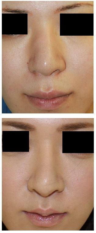 鼻根縮小術、人中短縮術 術後約 2年半_d0092965_3412640.jpg