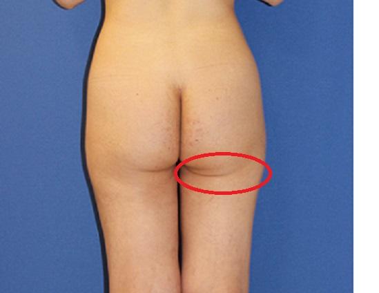 右臀溝のしわの位置改善 (おしりのたるみ改善)_d0092965_0361927.jpg