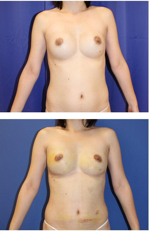 人工乳腺抜去 と同時に 脂肪移植豊胸 による 豊胸術_d0092965_1464854.jpg