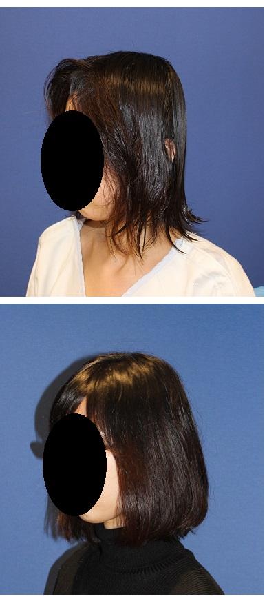 後頭部アパタイト(絶壁修正術) 術後約4か月_d0092965_36354.jpg
