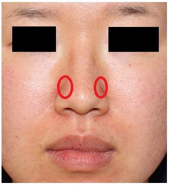 鼻翼上部縮小術(小鼻直上縮小術) , 鼻尖上部縮小術_d0092965_4453017.jpg