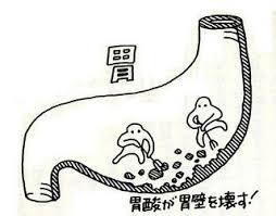 十二指腸潰瘍_e0097212_11272467.jpg