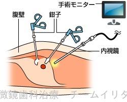 ニュータイプ歯科衛生士 東京マイクロスコープ顕微鏡歯科治療_e0004468_7193897.jpg