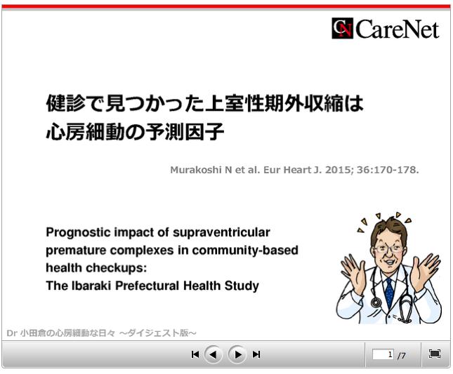 ケアネット連載 〜健診でみつかった上室性期外収縮は心房細動の予測因子_a0119856_1759580.png