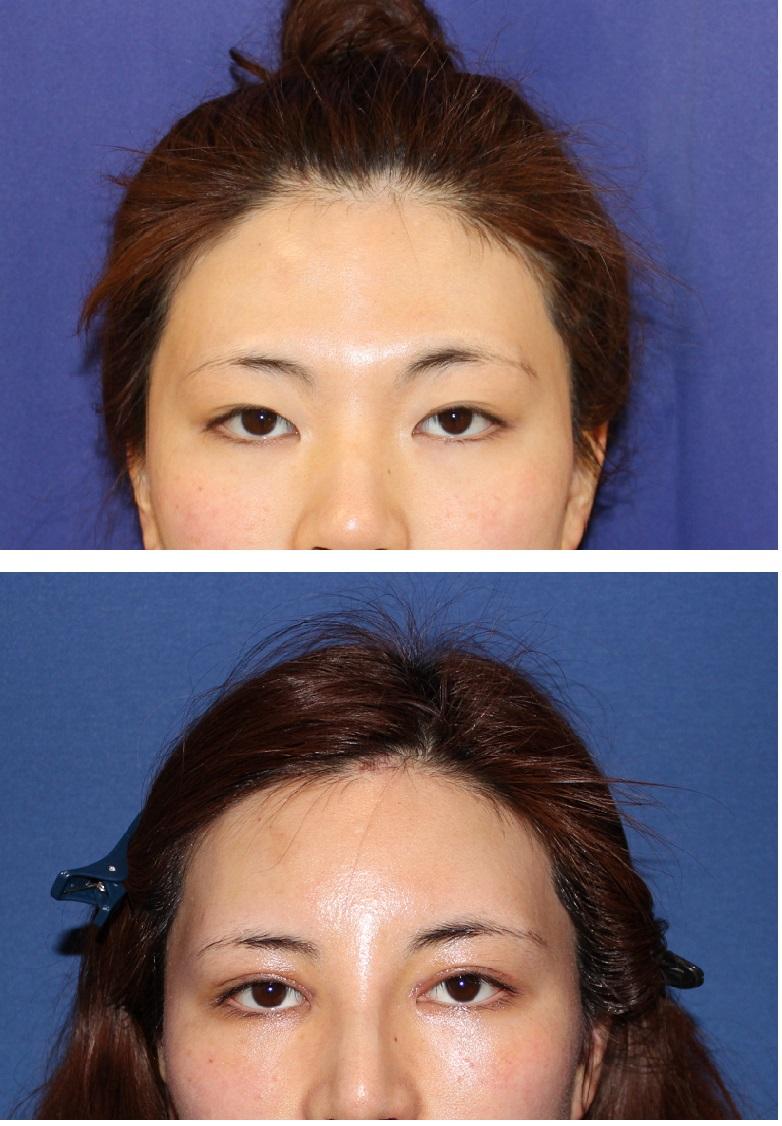鼻根縮小術(鼻骨骨切り幅寄せ)、額アパタイト形成術、二重切開、目頭切開、鼻プロテーゼ_d0092965_21523293.jpg