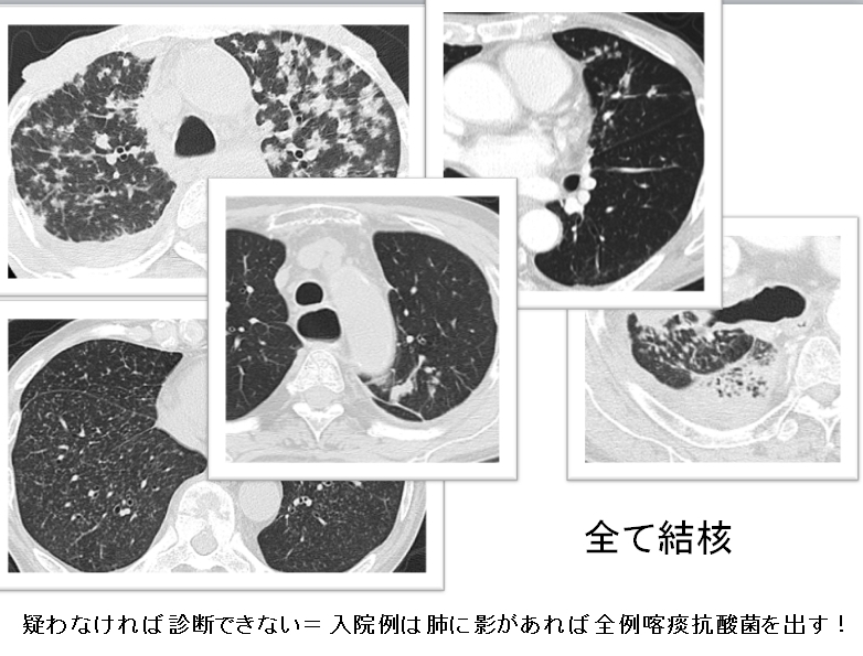 肺結核(TB: pulmonary tuberculosis)1_c0367011_23014854.jpg