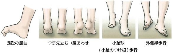足の痛み~3 成人期扁平足 治療~_a0296269_09295369.jpg
