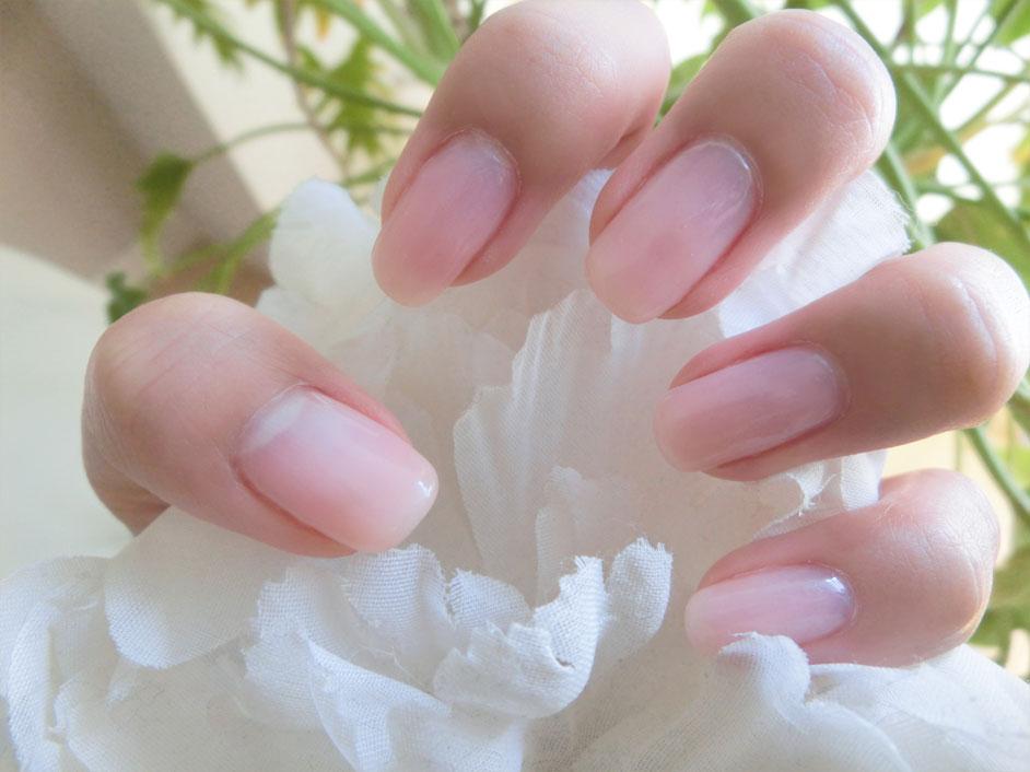 レインブーツと、小花柄ネイル、そして治療〜!_d0224894_17255598.jpg
