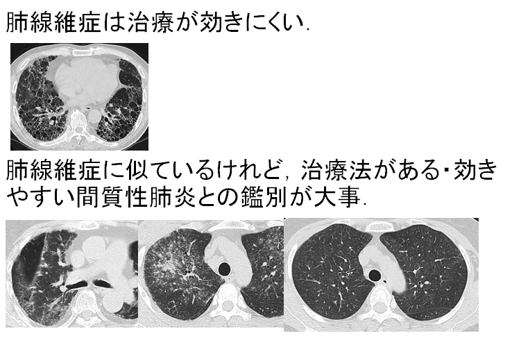 性 肺炎 急性 増悪 質 間