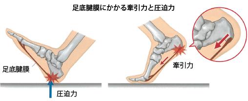 「足底腱膜」の画像検索結果