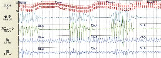 PSG(polysomnography)_c0367011_23453143.png