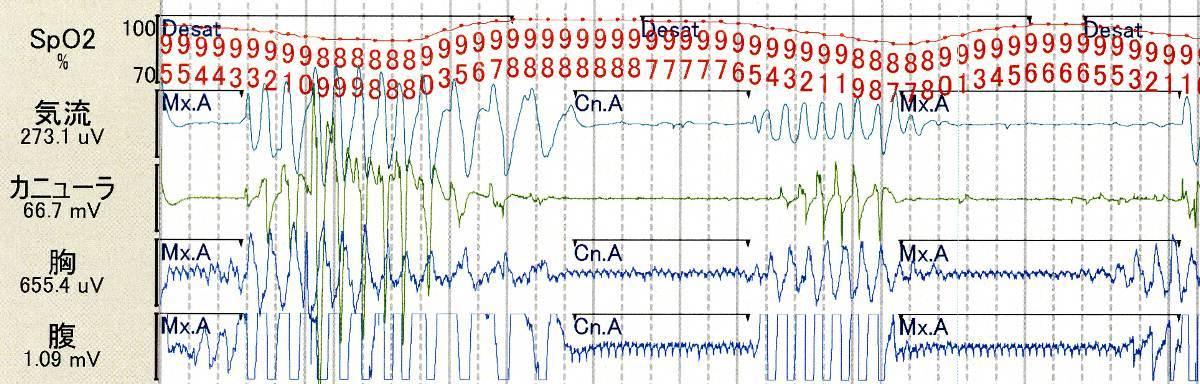 PSG(polysomnography)_c0367011_23453348.jpg
