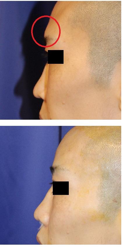 眉間部分セットバック (前頭洞部セットバック)_d0092965_22513326.jpg