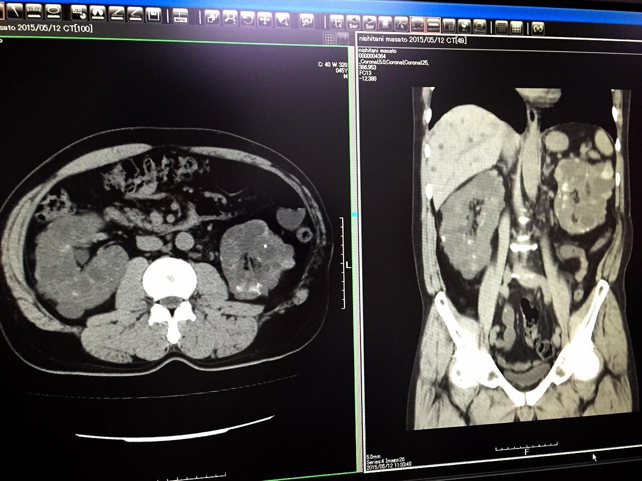 多発性嚢胞腎_e0115904_01102274.jpg