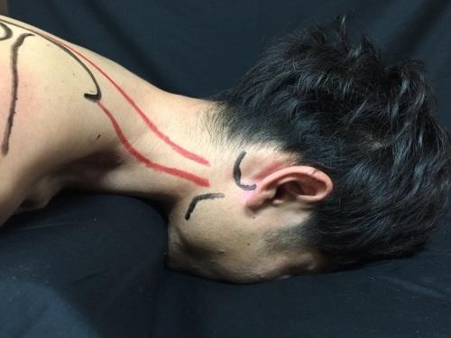 第31回 TOC体表解剖勉強会【肩甲挙筋】_b0329026_00162171.jpg
