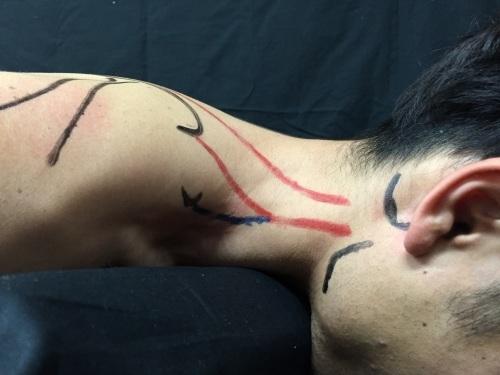 第31回 TOC体表解剖勉強会【肩甲挙筋】_b0329026_00230794.jpg