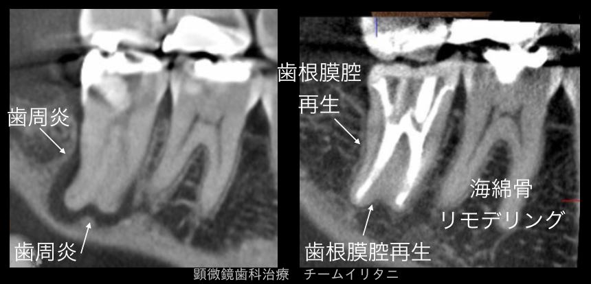 絶対に治すという勇気があれば良い 東京職人歯医者_e0004468_7153818.png
