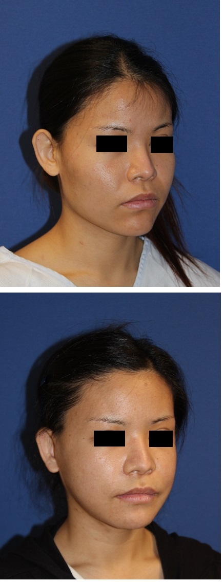 他院LeFortⅠ型骨切術後修正術、下顎矢状分割術、下顎スティック骨切、頬骨骨切術、顎先骨切術+その他_d0092965_1153461.jpg