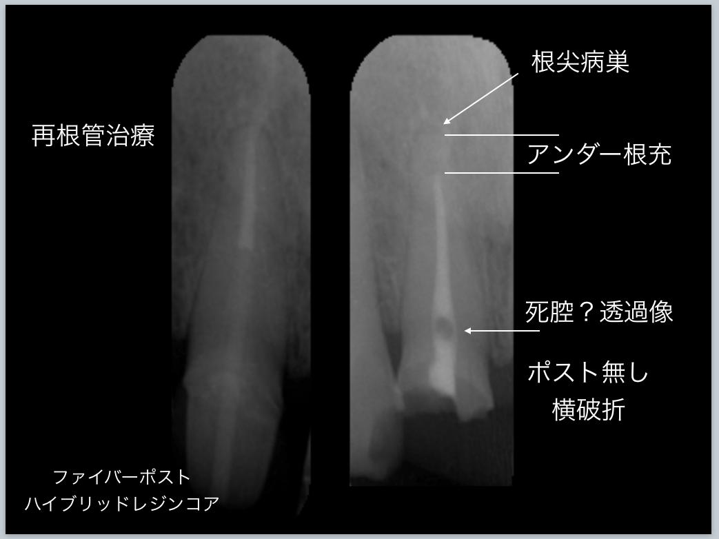 30分急患枠で応急処置 顕微鏡東京職人歯医者_e0004468_14362544.png