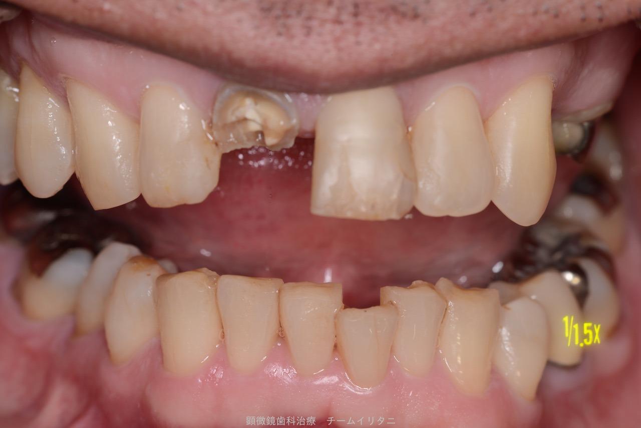 30分急患枠で応急処置 顕微鏡東京職人歯医者_e0004468_5363658.jpg