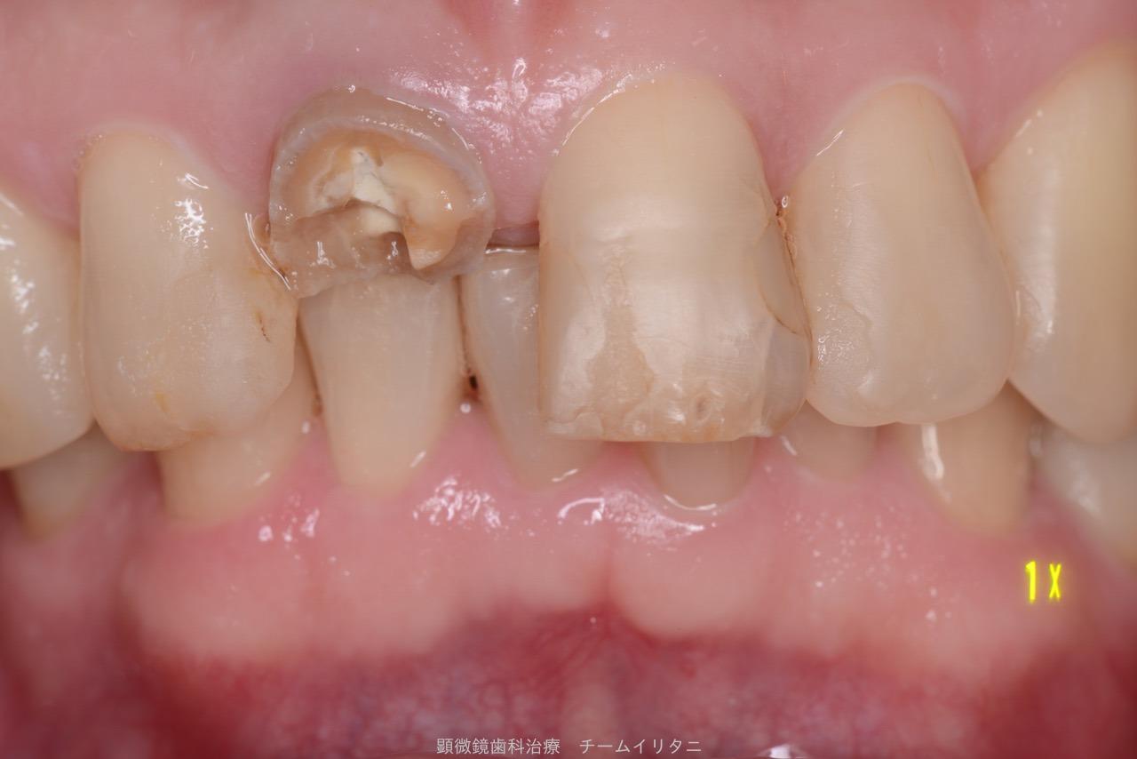 30分急患枠で応急処置 顕微鏡東京職人歯医者_e0004468_5365669.jpg