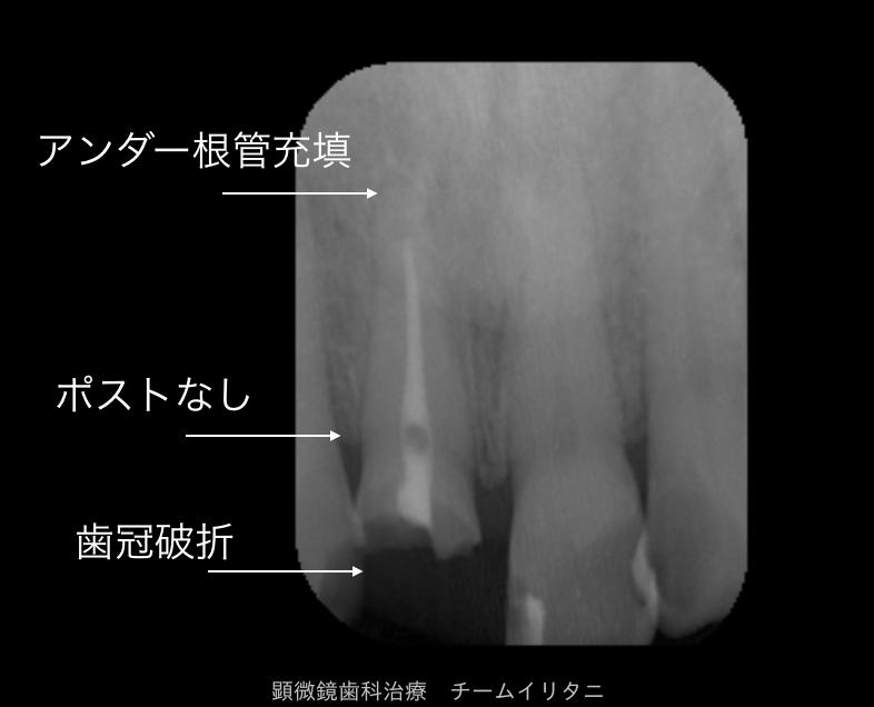 30分急患枠で応急処置 顕微鏡東京職人歯医者_e0004468_5472436.png