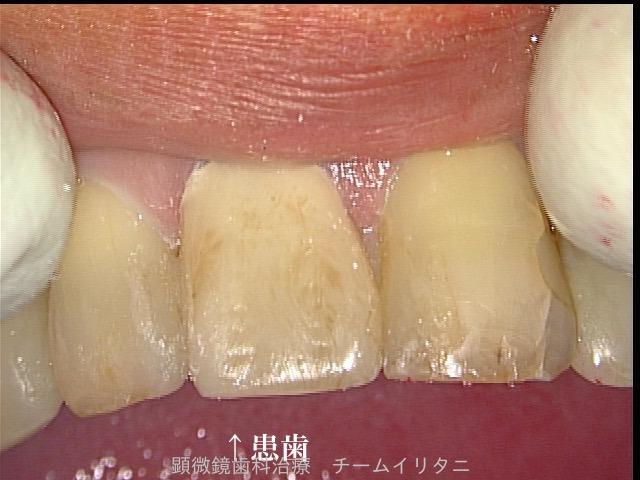 30分急患枠で応急処置 顕微鏡東京職人歯医者_e0004468_6231081.jpg