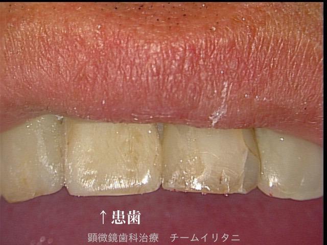 30分急患枠で応急処置 顕微鏡東京職人歯医者_e0004468_6231490.jpg