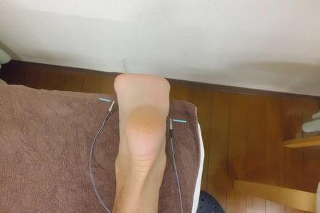 足底筋膜炎のハリ治療_e0096277_17565182.jpg
