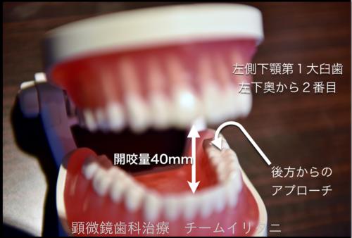 極力削らない歯科治療は密室の世界 東京職人歯医者_e0004468_6214372.png