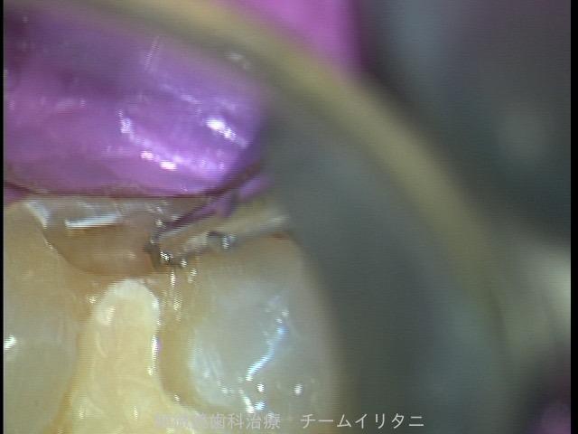 極力削らない歯科治療は密室の世界 東京職人歯医者_e0004468_6215536.jpg
