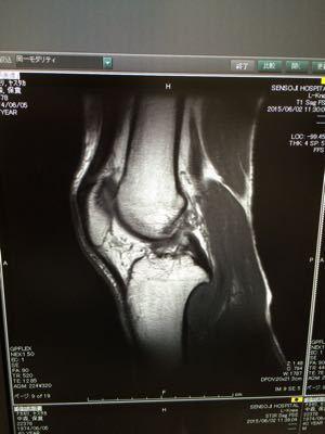怪我から1ヶ月、始動へ…_d0011635_14274370.jpg