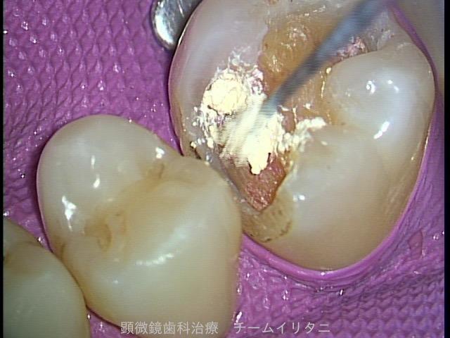 神経を抜かない治療。 全てはラバーダム防湿下で 東京職人歯医者_e0004468_6345263.jpg