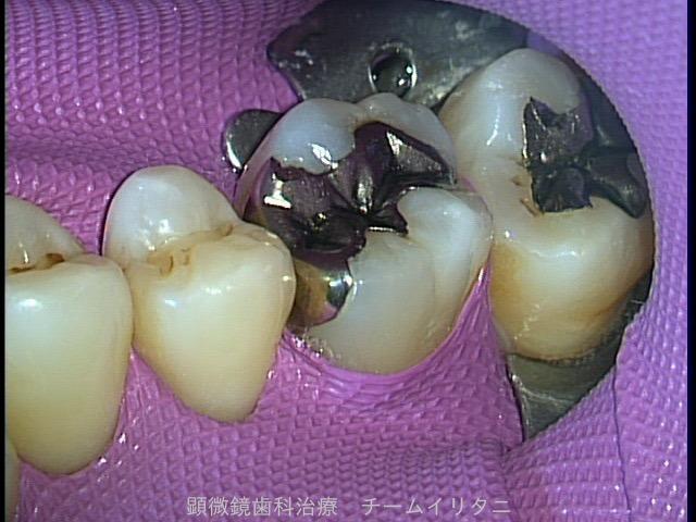神経を抜かない治療。 全てはラバーダム防湿下で 東京職人歯医者_e0004468_635594.jpg