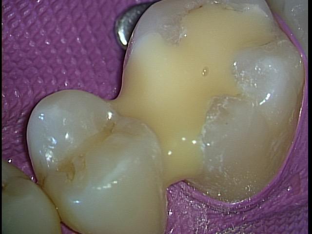 神経を抜かない治療。 全てはラバーダム防湿下で 東京職人歯医者_e0004468_22231842.jpg