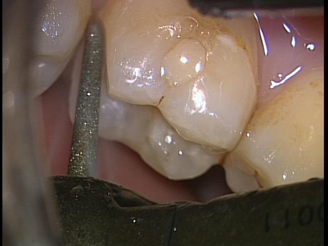 極力削らない歯科治療は密室の世界 東京職人歯医者_e0004468_22584341.jpg
