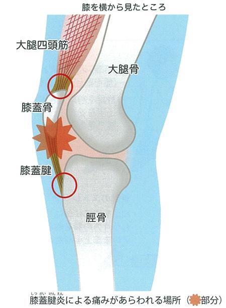 足の痛み~6 膝蓋腱炎(ジャンパー膝) 原因・病態~_a0296269_10032104.jpg